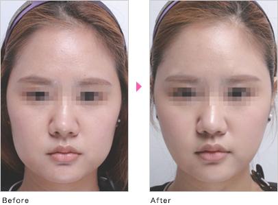 溶解 注射 脂肪 顔